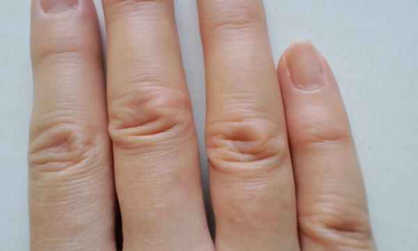 指関節の腫れの対処法!症状別に注意すべきポイントとは