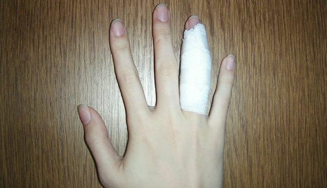 突き指で骨折も!放っておくと危ない7つの症状