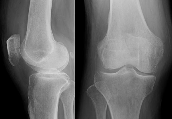 膝蓋骨骨折で急に膝が腫れた!折れ方別の7つの応急処置