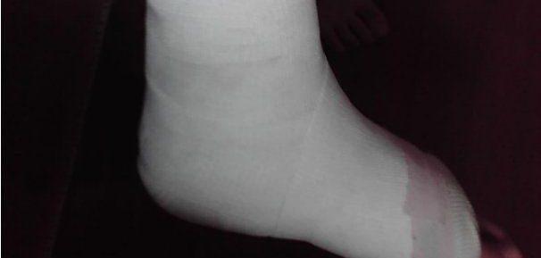 足の指を骨折した!激痛を和らげるための7つの対処法