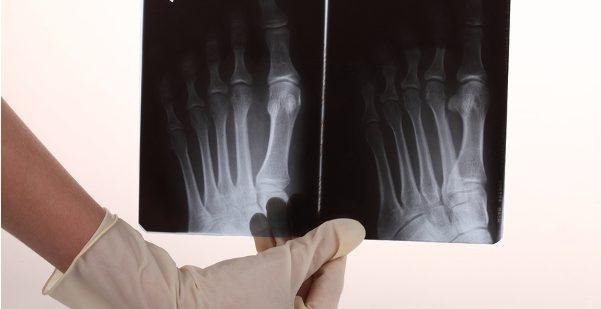 足の小指を骨折、悪化を防ぐため即刻すべき7つの処置