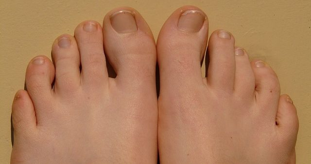 足の指の腫れは何が原因?痛む場所で予測する内臓疾患