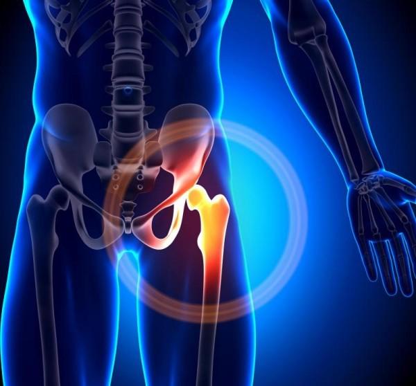 股関節の痛みの原因となるものは?疑うべき7つの部位