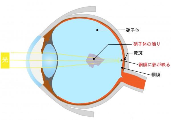 目に黒い点がちらつくのは飛蚊症?原因と治療法を伝授